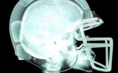 Concussions are harming student athletes